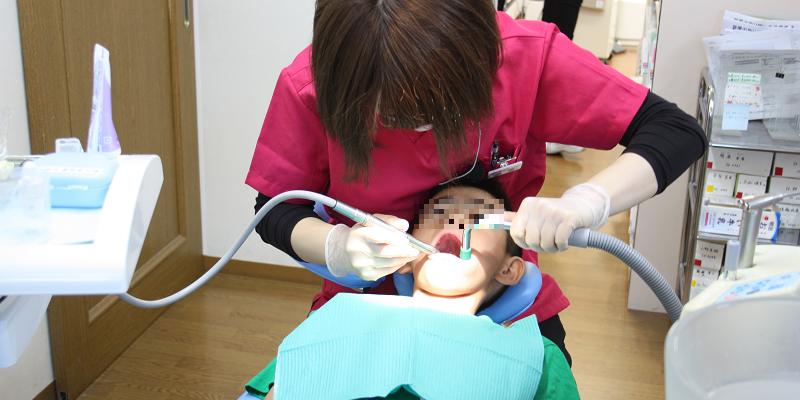 歯科腔内洗浄